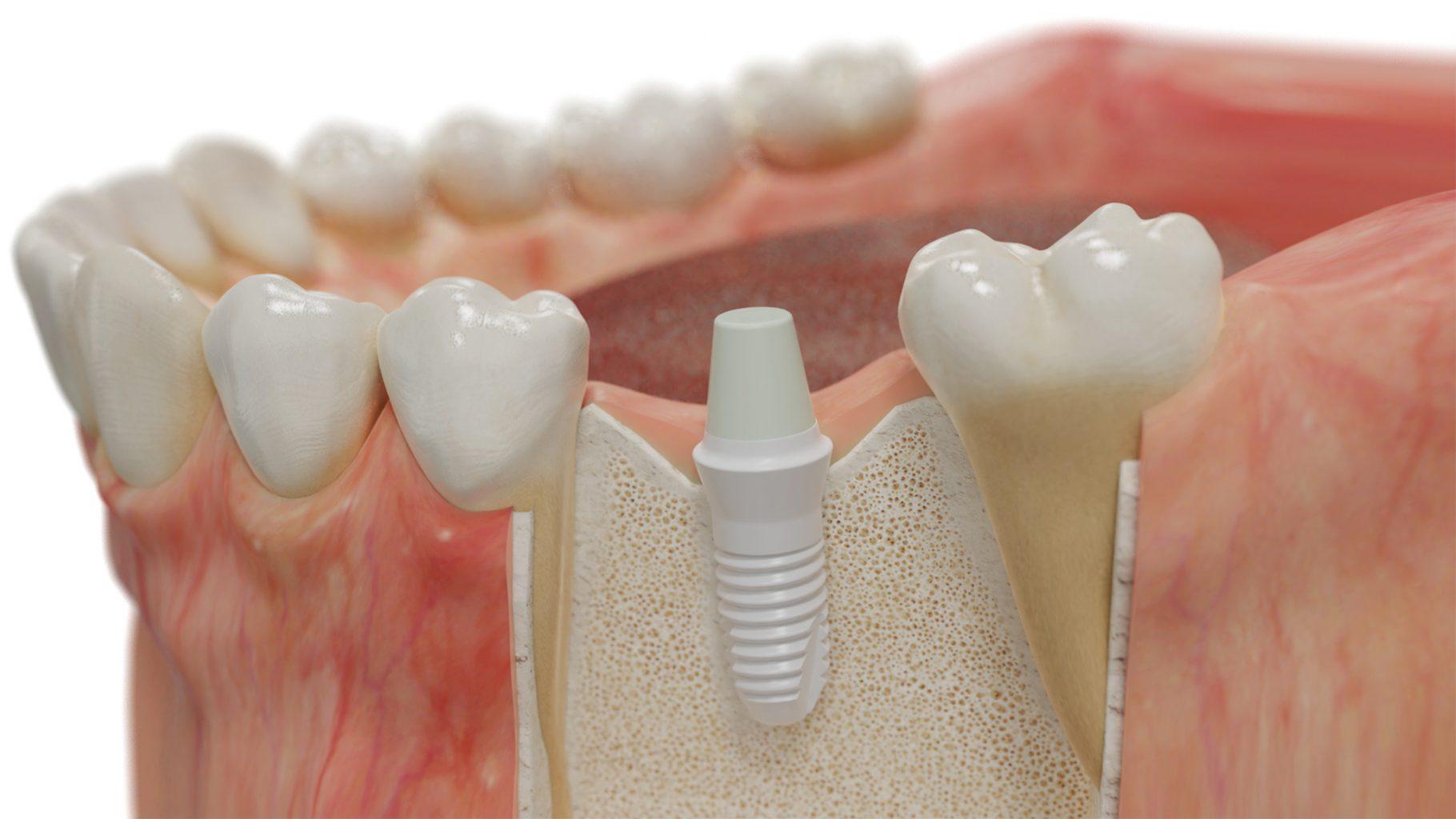 Inseriertes Keramik Implantat Im Kieferknochen